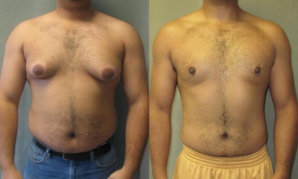CrazyBulk Gynectrol Преглед: Това помага ли да се отървете от гинекомастия?
