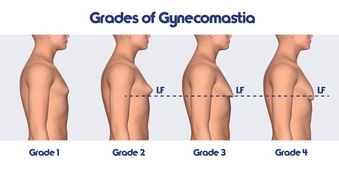 CrazyBulk Gynectrol revisión - Reducir masculino tejido mamario (ginecomastia)